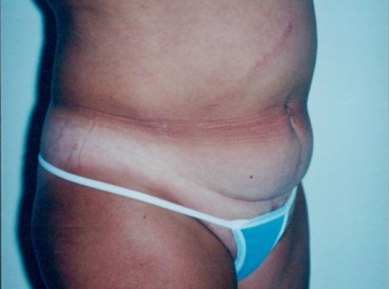 Slim Lipo Abdomen Before Turn.jpg