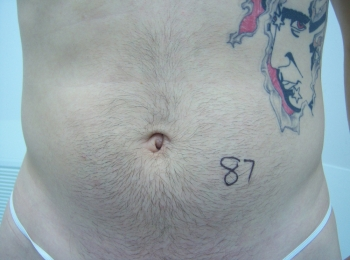 Slim Lipo Abdomen Before Frontal.jpg