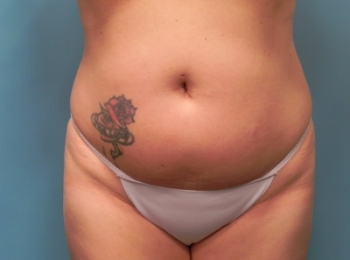 Slim Lipo Before Frontal 2.jpg