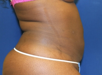 Slim Lipo - Side After Procedure
