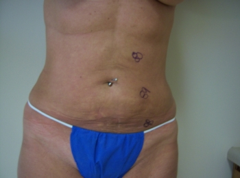 Slim Lipo Abdomen After Frontal.jpg