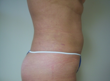 Slim Lipo Abdomen After Side.jpg