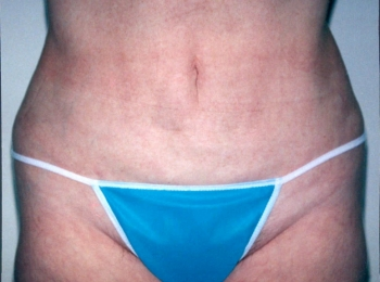 Slim Lipo Abdomin After Frontal.jpg