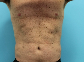 Slim Lipo Abdomen After Frontal 16
