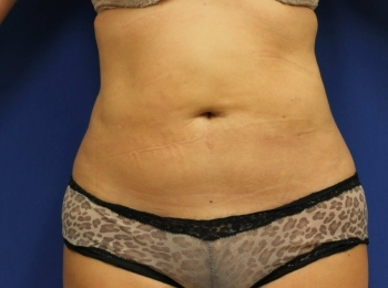 Slim Lipo Abdomen - Front After Procedure