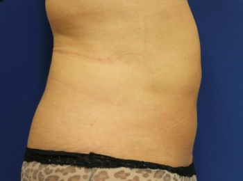 Slim Lipo Abdomen - Side After Procedure.