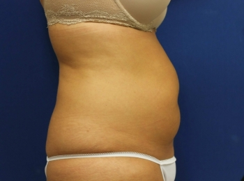 Slim Lipo Abdomen - Side Before Procedure
