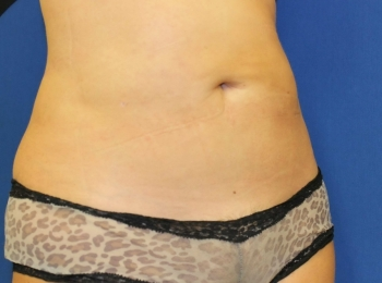 Slim Lipo Abdomen - Turn After Procedure.