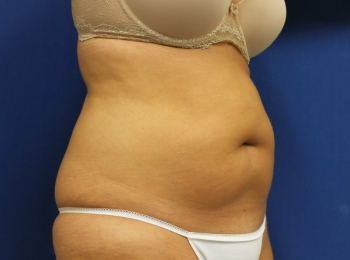 Slim Lipo Abdomen - Turn Before Procedure