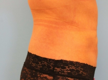 Slim Lipo Abdomen - Side After Procedure