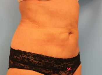 Slim Lipo Abdomen - Turn After Procedure