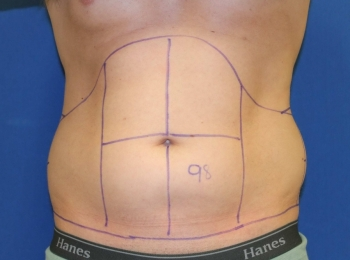 Slim Lipo Abdomen - Front Before Procedure