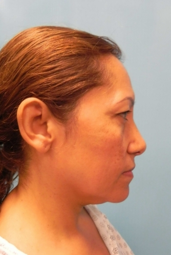 Slim Lipo Neck - Side Before Procedure