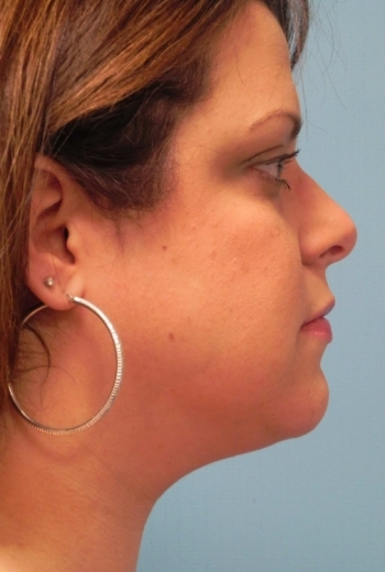 Slim Lipo Neck - Side After Procedure