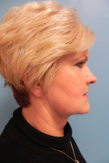 Slim Lipo Neck - After Before Procedure