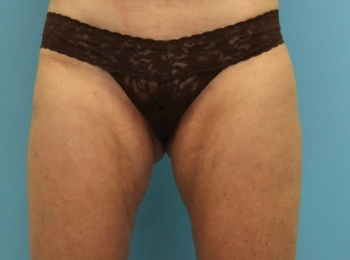 Slim Lipo Lateral Thigh Frontal After.jpg