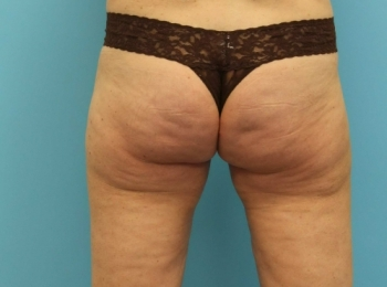 Slim Lipo Lateral Thigh Back After.jpg
