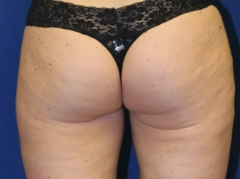 Slim Lipo Thighs - Back After Procedure