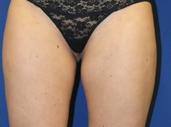 Slim Lipo Thighs - Front After  Procedure
