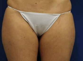 Slim Lipo Thighs - Front Before Procedure