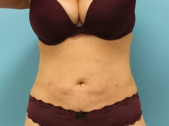 SlimLipo Abdomen & Flank - After Procedure Front