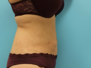 SlimLipo Abdomen & Flank - After Procedure  Side