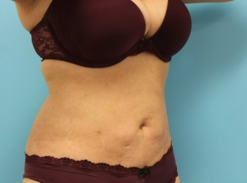 SlimLipo Abdomen & Flank - After Procedure  Turn