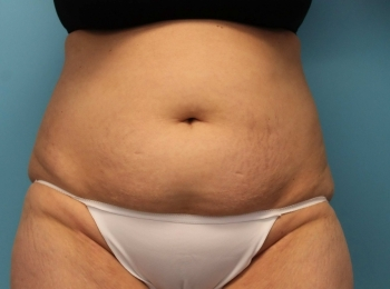 SlimLipo Abdomen & Flank - Before Procedure Frontal