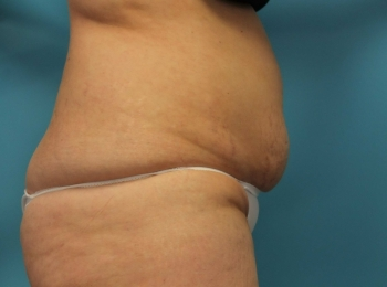 SlimLipo Abdomen & Flank - Before Procedure  Side