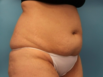 SlimLipo Abdomen & Flank - Before Procedure  Turn