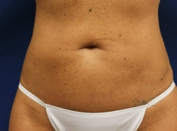 2 Abdomen Frontal After SlimLipo Procedure.jpg