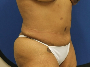3 Abdomen Turn After SlimLipo Procedure.jpg