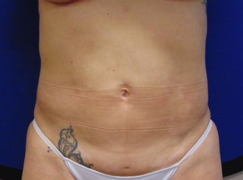 lipo front after