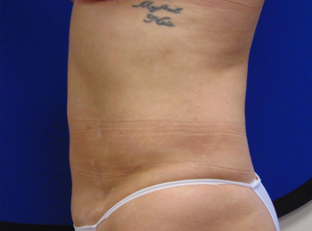 lipo side after