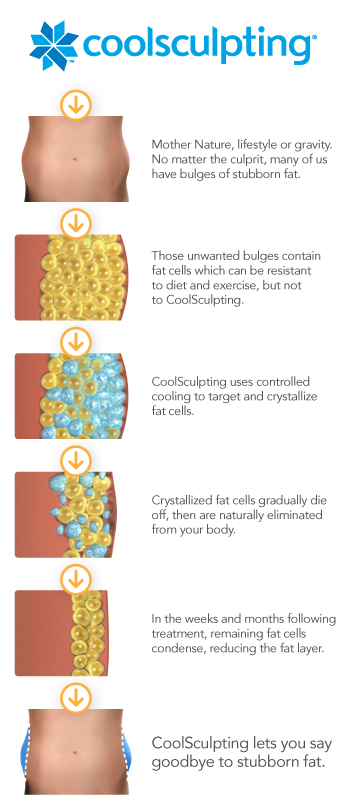 CoolSculpting Nashville Tennessee