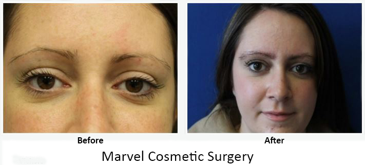 Before After Eyebrow Transplant