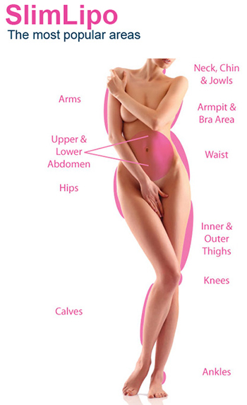SlimLipo Most Popular Areas