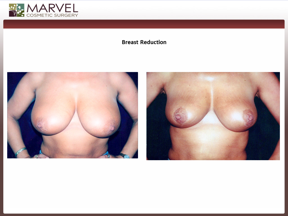 Before and After Breast Reduction Procedure