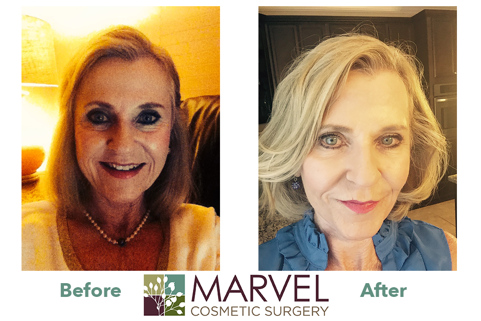 Before and After Facelift Surgery: Cindy Lamb